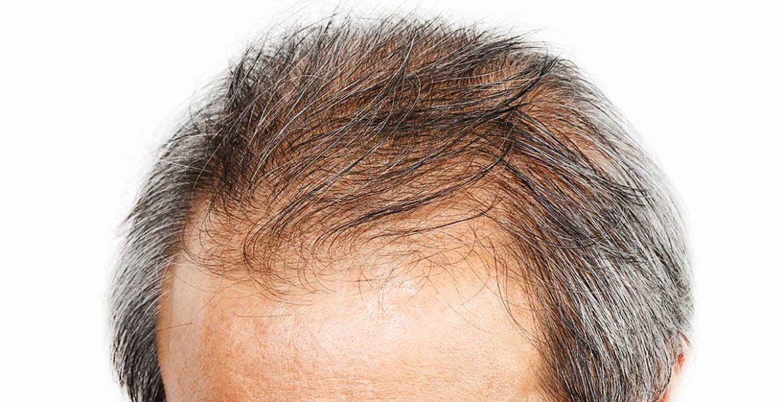 cheveux plus fins sur le dessus