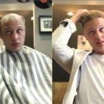 Le Remplacement de cheveux