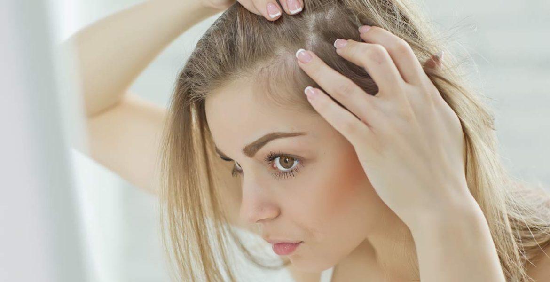 Chute de cheveux: les femmes aussi concernées  !