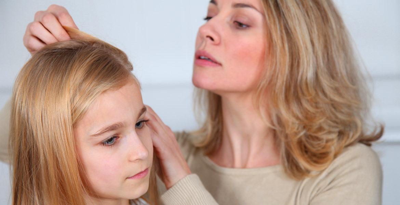 Alopécie : les enfants également victimes
