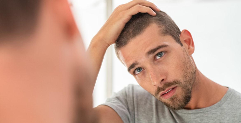 Existe-t-il un traitement efficace contre la calvitie ?