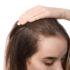 Qu'est-ce que l'alopécie féminine ?